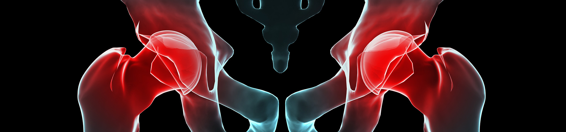 Joint Replacement Pain Kennesaw, GA