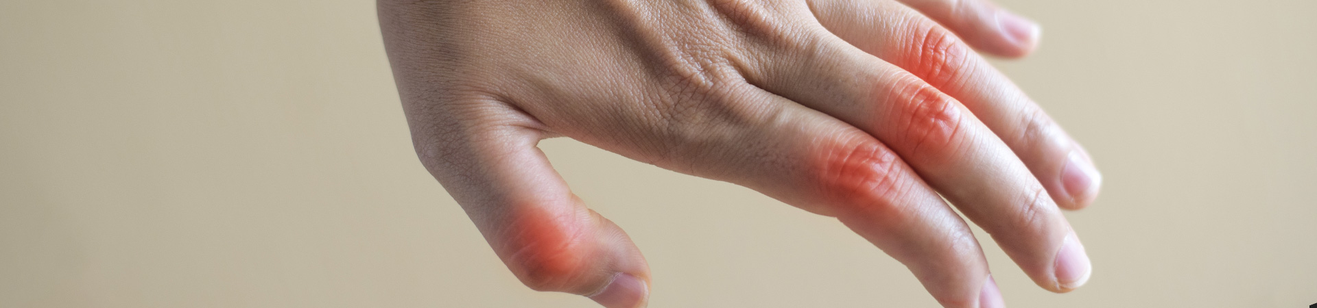 Rheumatoid Arthritis Kennesaw, GA