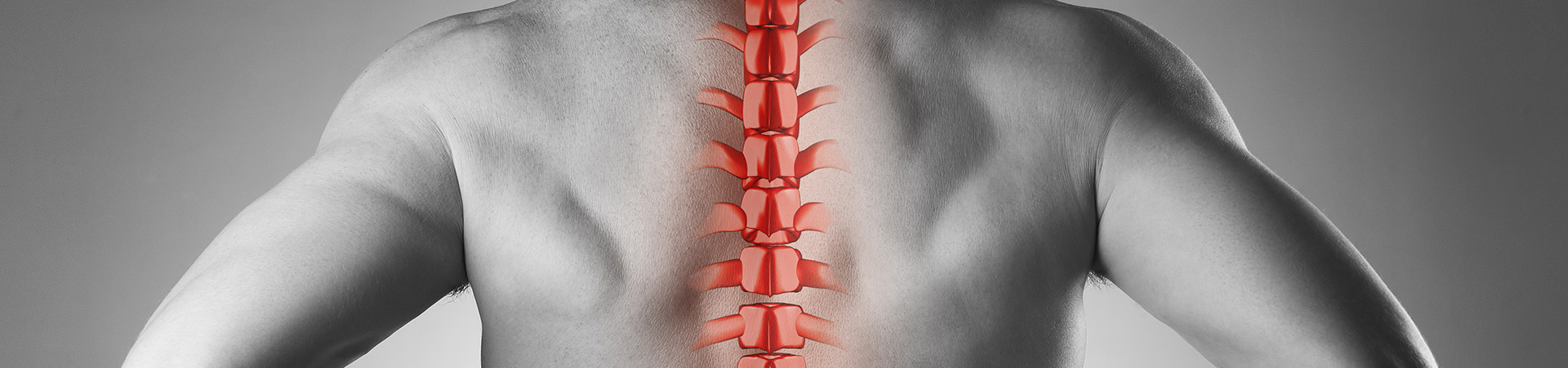 Minimally Invasive Spine Surgery Kennesaw, GA