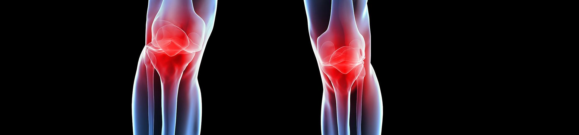 Osteoarthritis Kennesaw, GA